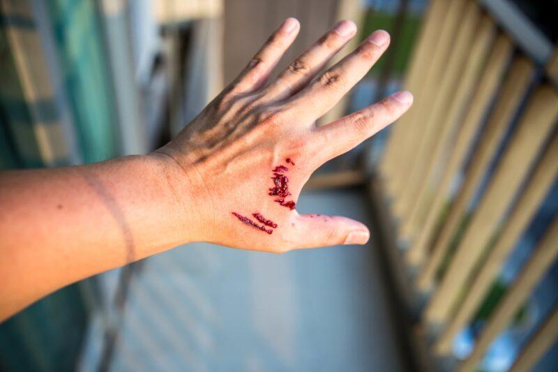 bloody teeth cut lines on left hand